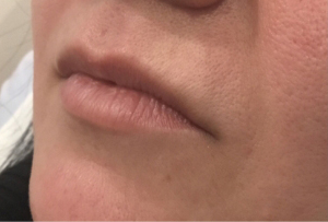 Befor Fillers Treatment