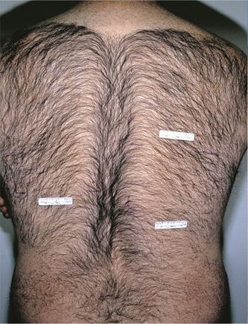 Laser Hair Removal in Peabody