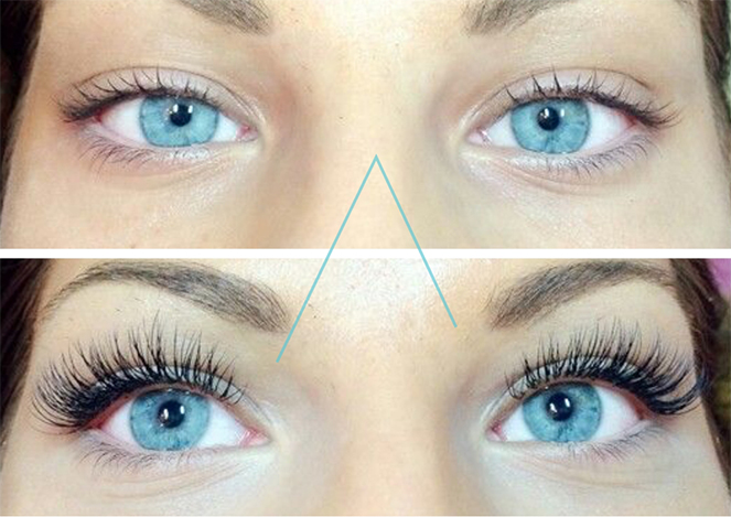 Lash Removal in Wellesley Hills