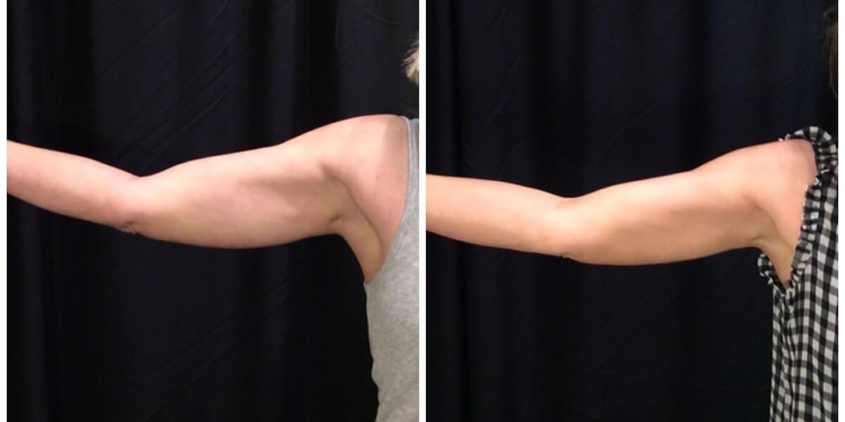 CoolSculpting Arm