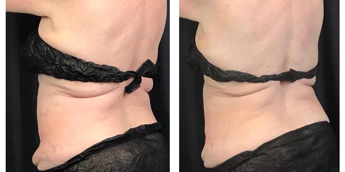 CoolSculpting Back/ Lower Abdomen