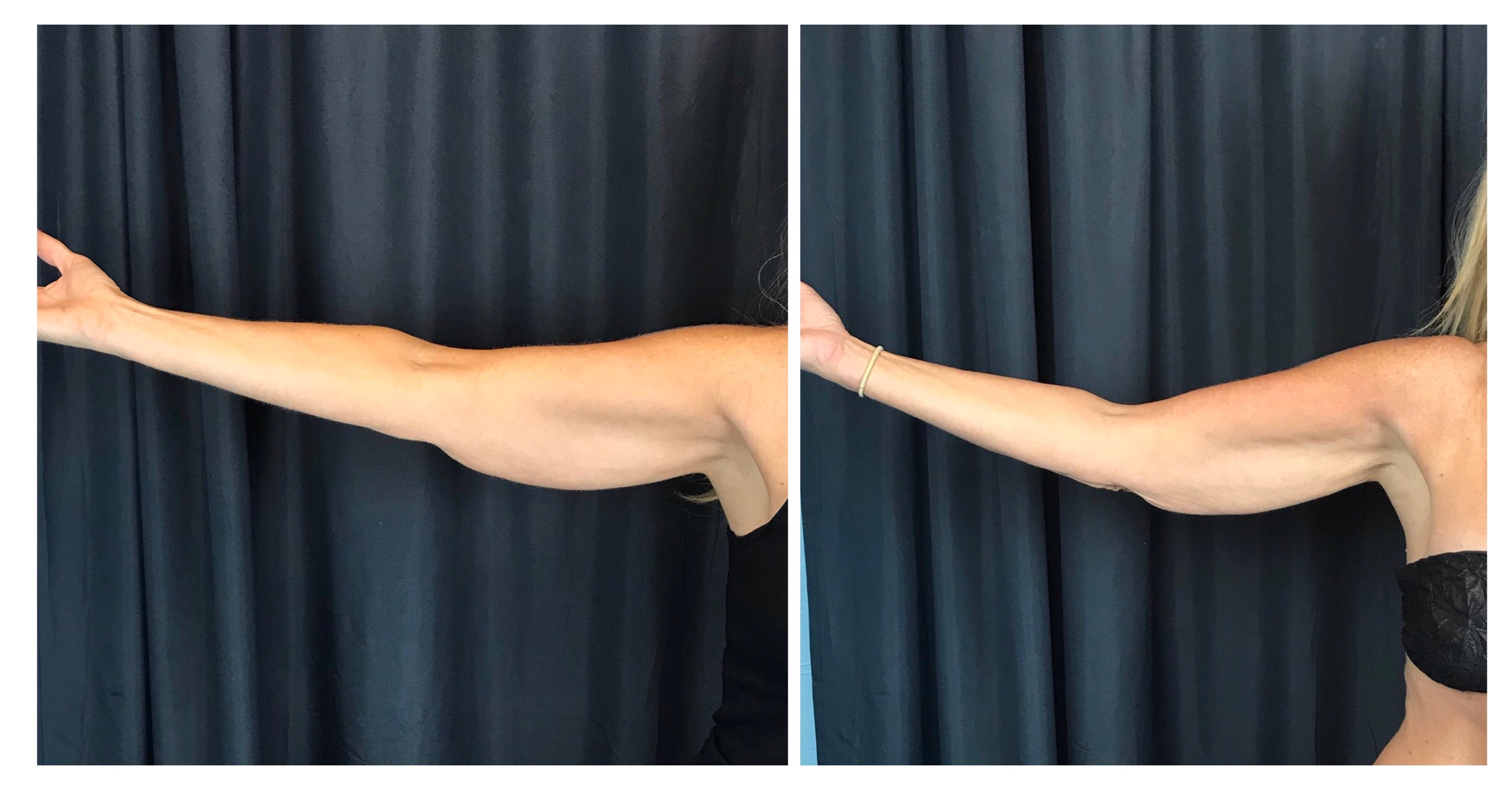 CoolSculpting Gallery Scroll
