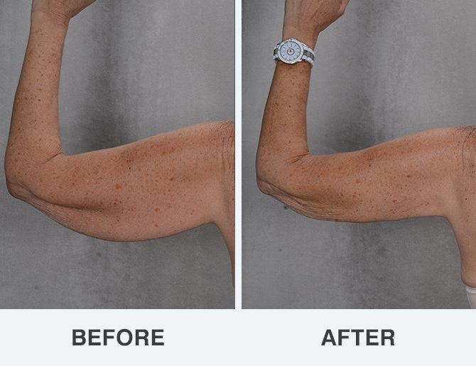SmartLipo Triplex™ Before & After - Arms