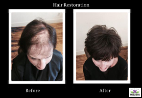 Hair Restoration and Creation