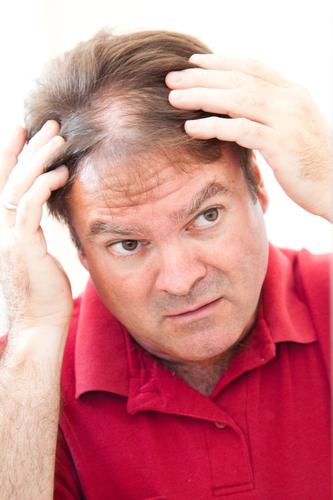Hair Loss Restoration for Men & Women