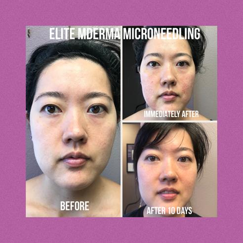 Elite MDerma Microneedling by DermaPen