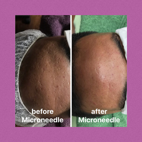 Classic Microneedling for Moderate Acne