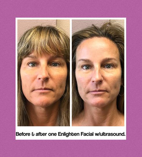 SkinTech Lightening Facial